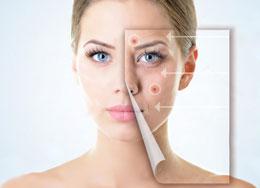 acne-elos