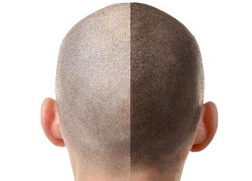 trichopigmentation