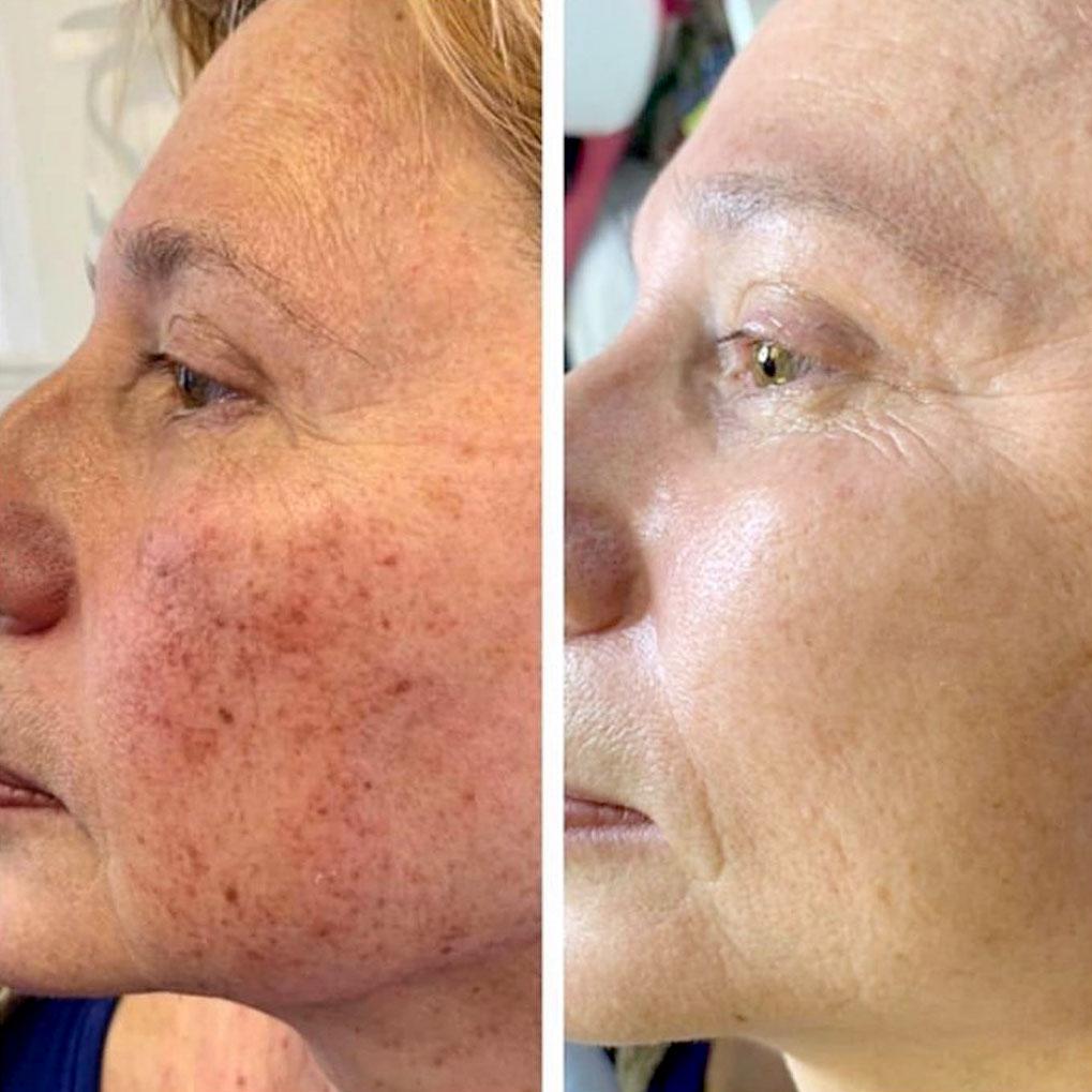 Пигментация, пигментация на лице, пигментация кожи, против пигментации, лечение пигментации, как убрать пигментацию, пятна на лице, пигментные пятна на лице, красные пятна на лице, как избавиться от пятен на лице, пигментные пятна +на лице как избавиться, черные пятна на лице, как убрать пятна на лице, удаление пятен на лице, удаление пигментных пятен на лице, пятна от прыщей на лице, лечения пятна лицо, лицо покрылось красными пятнами, лицо покрылось пятнами, пятна на лице после прыщей, коричневые пятна на лице, белые пятна на лице, пятна лице причины и лечение, точки на лице, черные точки на лице, от черных точек на лице, черные точки на лице как избавиться, как избавиться от точек на лице, как избавиться от черных точек, как очистить лицо от черных точек, как убрать черные точки на лице, неодимовый лазер, неодимовые лазеры, лазер алматы, удаление лазером, лечение лазером, удаление лазером в алматы, неодимовым лазером, отбеливание кожи, отбеливание кожи лица, эластичность кожи, как осветлить кожу, старение кожи, старение кожи лица, против старения, старение лица, старение женщины, убрать морщины, глаза морщины убрать, убрать морщины под, как убрать морщины под глазами, морщины, морщины вокруг, морщины вокруг глаз, против морщин, морщины на лице, как убрать морщины, морщины под глазами, морщины на лбу, как избавиться от морщин, эффективные от морщин, глаза морщины убрать, мимические морщины, морщины 30, глубокие морщины, очищение лица, очищение кожи лица, проблемная кожа, проблемная кожа лица, жирная проблемная кожа, уход за проблемной кожей