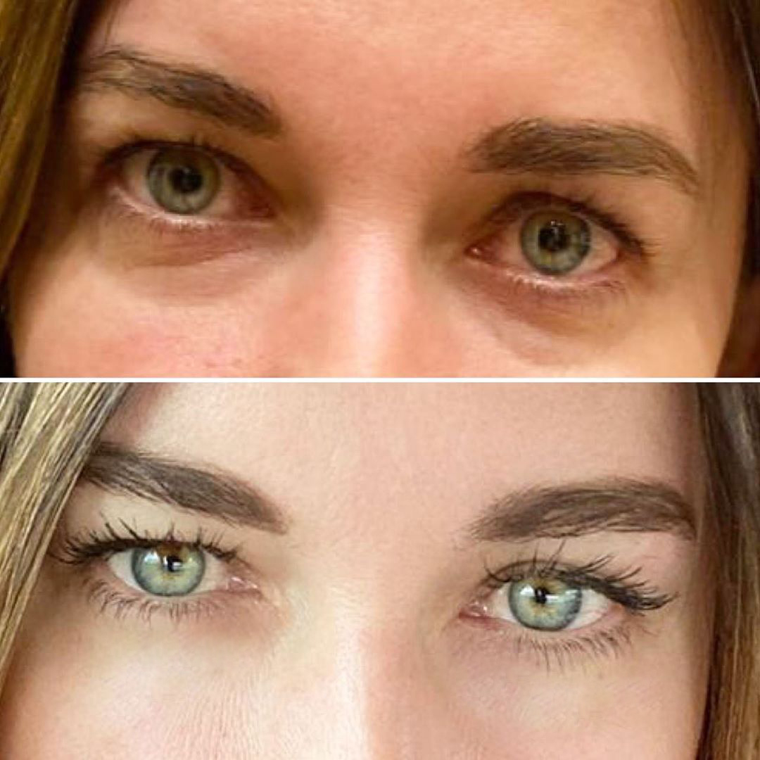 Peptide-rejuvenation-of-the-eye-area