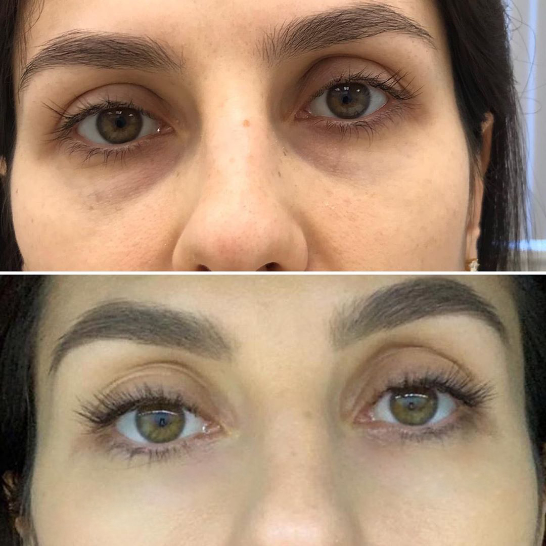 Peptide-rejuvenation-of-the-eye-area1