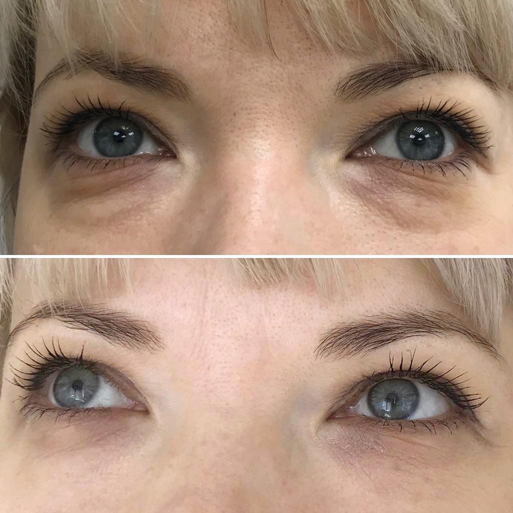 Peptide-rejuvenation-of-the-eye-area2