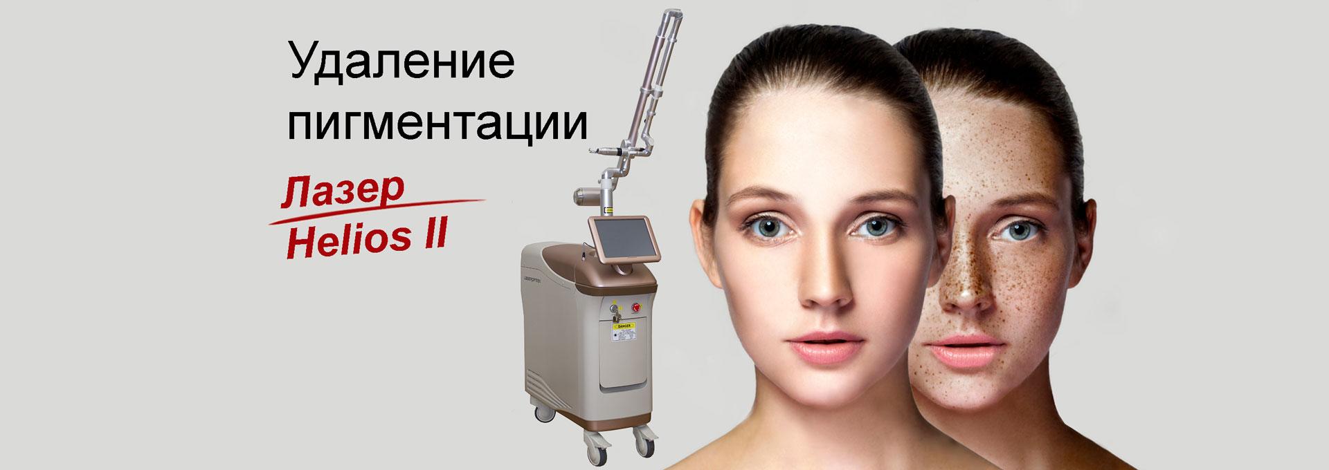 pigmetation-delete-laser-helios-2